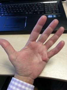 Diabetes and dupuytren's contracture, pre-op1