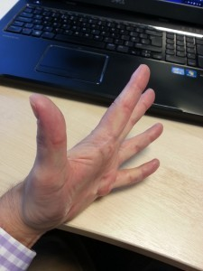 Diabetes and dupuytren's contracture, pre-op2