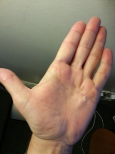 Diabetes and dupuytren's contracture, post-op1